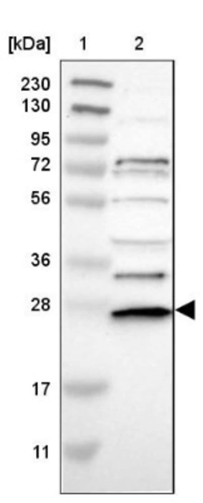 anti-UbcH3/Cdc34, Polyclonal, Novus Biologicals 0.1mL; Unlabeled:Life Sciences