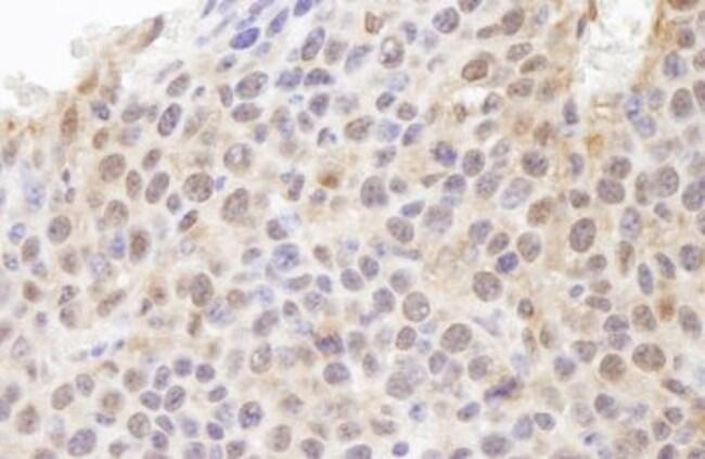 anti-Ubiquitin, Polyclonal, Novus Biologicals 0.1mL; Unlabeled:Antibodies