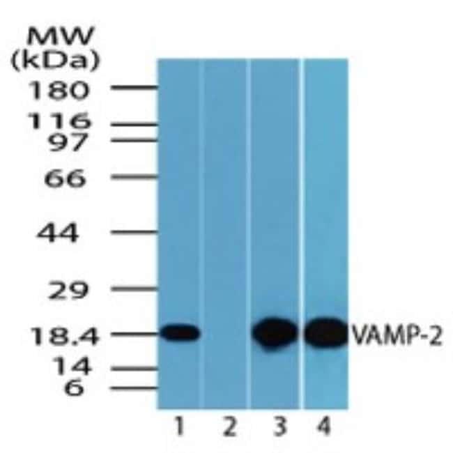 anti-VAMP-2, Polyclonal, Novus Biologicals:Antibodies:Primary Antibodies