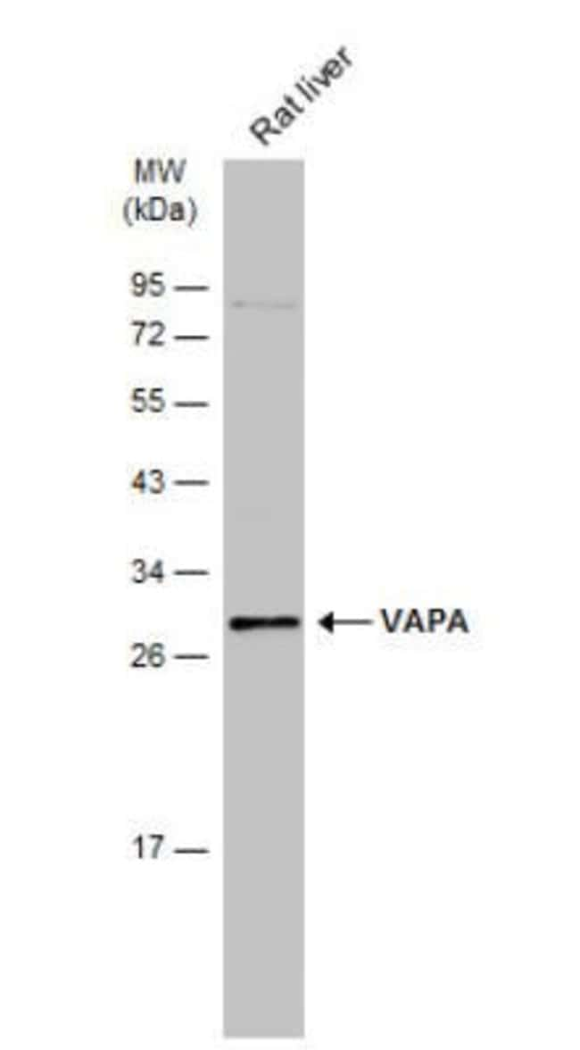 anti-VAP-A, Polyclonal, Novus Biologicals 0.1mg; Unlabeled:Life Sciences