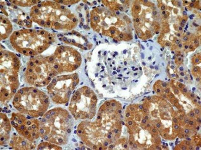 Mouse anti-VEGF R2/KDR/Flk-1, Clone: 2C6, Novus Biologicals:Antibodies:Primary