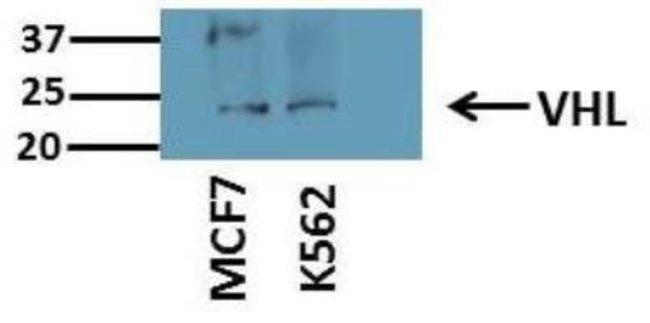 anti-Von Hippel Lindau, Polyclonal, Novus Biologicals:Antibodies:Primary
