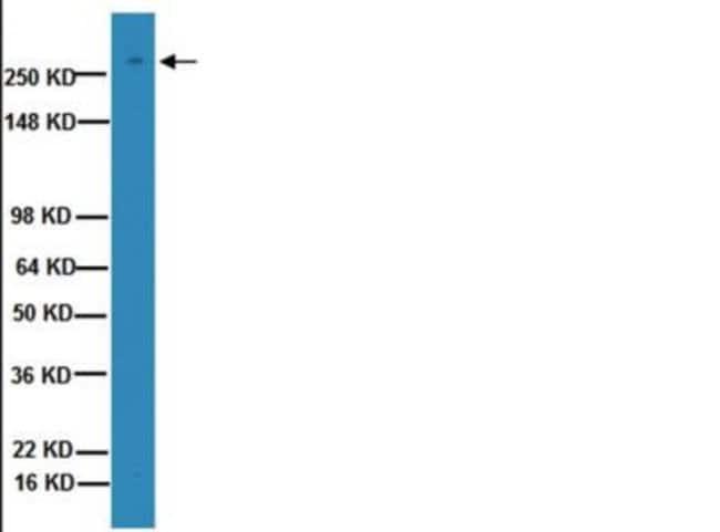 Mouse anti-Von Willebrand Factor, Clone: 2Q2134, Novus Biologicals 100µL;