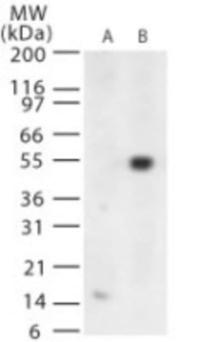 anti-West Nile Virus Protein E, Polyclonal, Novus Biologicals:Antibodies:Primary