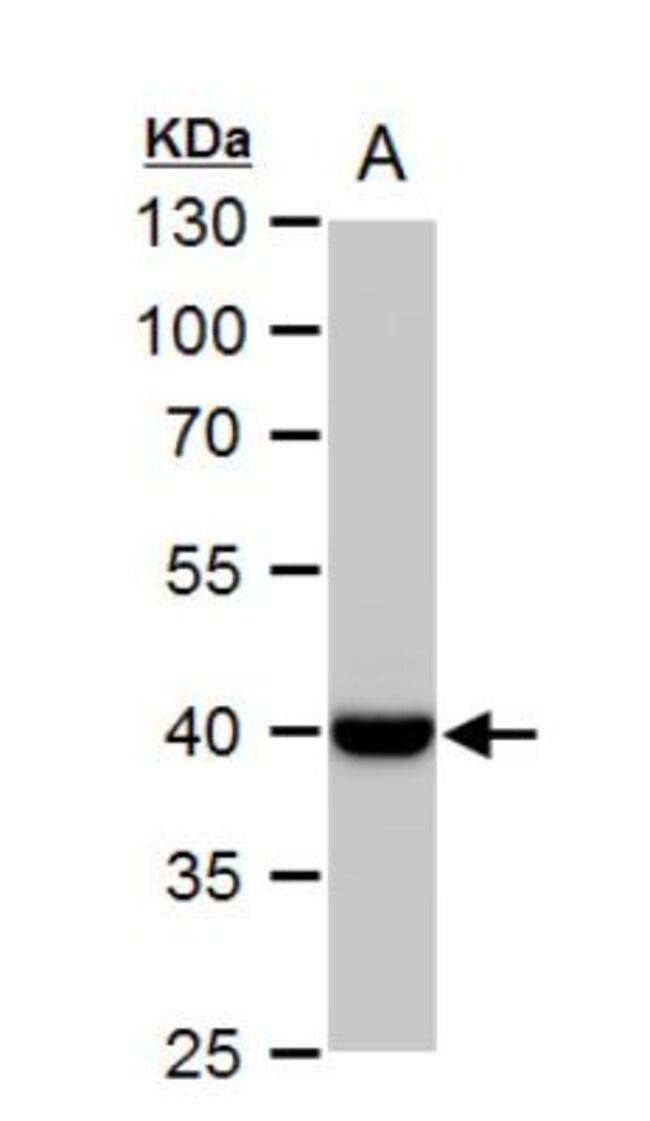 anti-Wnt-11, Polyclonal, Novus Biologicals 0.1mg; Unlabeled:Life Sciences
