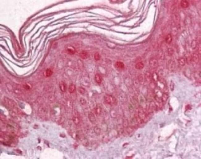 anti-ZBTB7A/Pokemon, Polyclonal, Novus Biologicals:Antibodies:Primary Antibodies