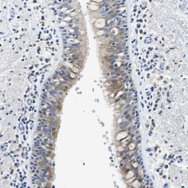 anti-ZDHHC13, Polyclonal, Novus Biologicals 0.1mL; Unlabeled:Life Sciences