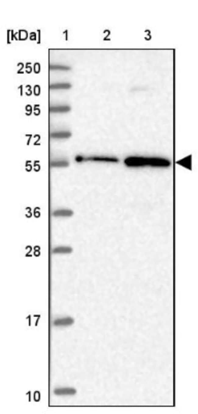 anti-ZNF436, Polyclonal, Novus Biologicals 0.1mL; Unlabeled:Life Sciences