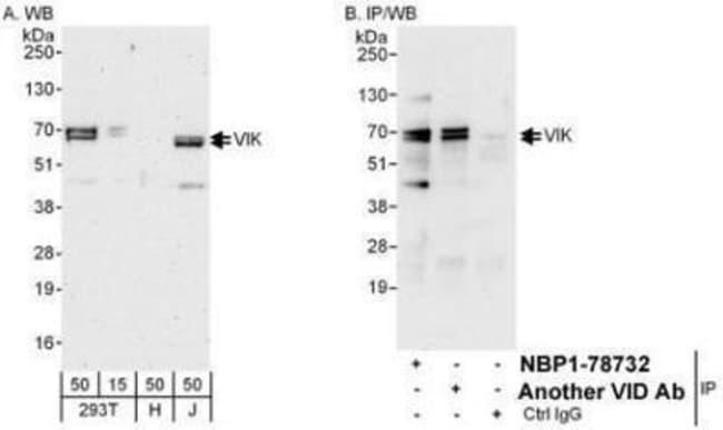 anti-ZNF655, Polyclonal, Novus Biologicals 0.1mg; Unlabeled:Life Sciences