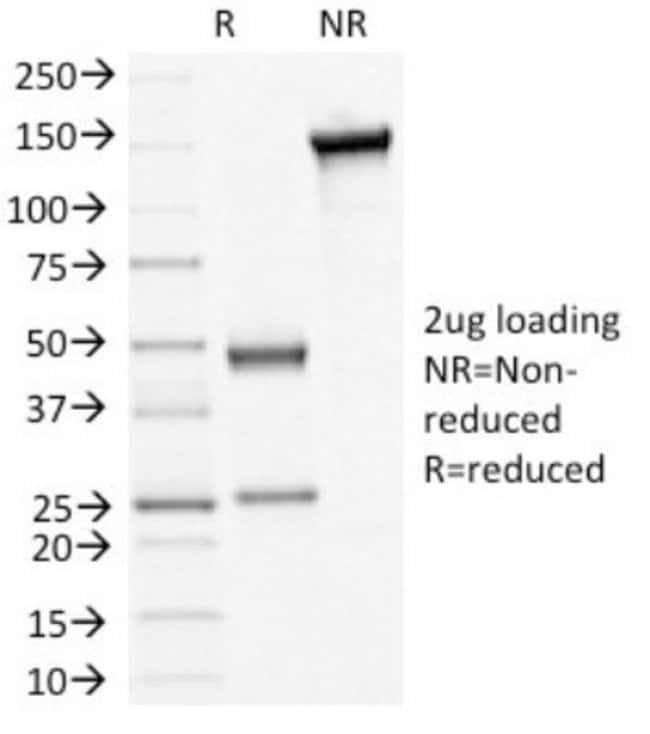 beta-Catenin Mouse anti-Chicken, Human, Mouse, Clone: 5H10, Novus Biologicals::