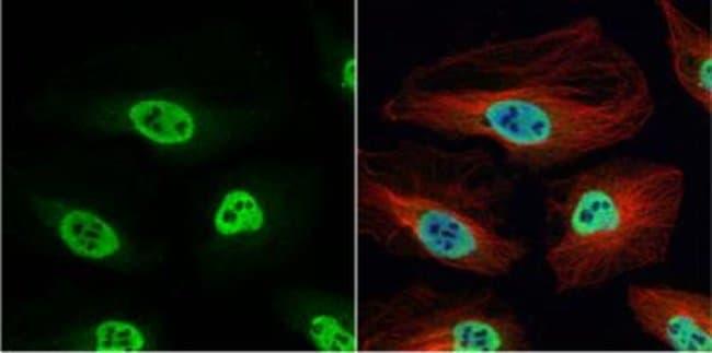 anti-hnRNP H, Polyclonal, Novus Biologicals 0.1mg; Unlabeled:Antibodies