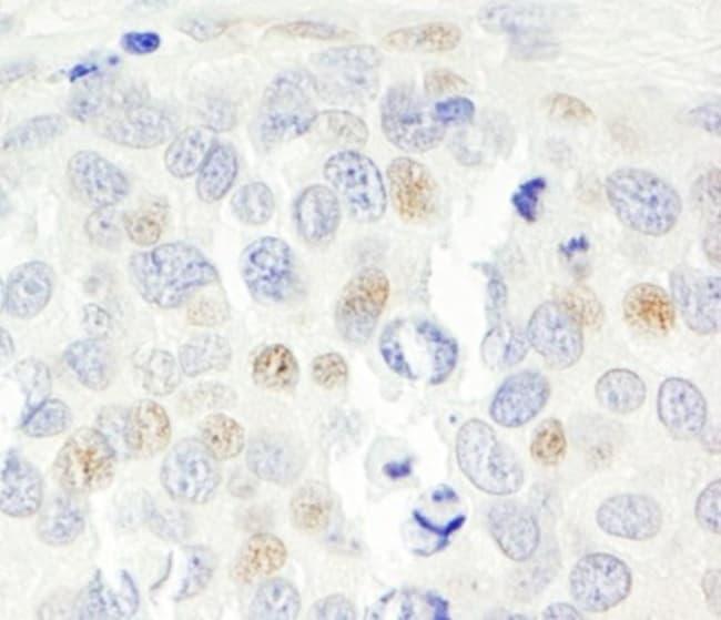 anti-p16INK4a / CDKN2A/p14ARF, Polyclonal, Novus Biologicals:Antibodies:Primary