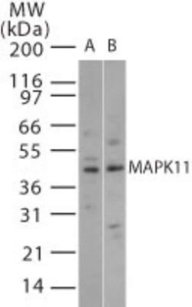 anti-p38 beta/MAPK11, Polyclonal, Novus Biologicals:Antibodies:Primary
