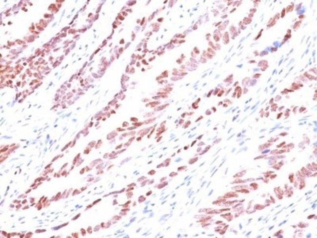 Mouse anti-p57 Kip2, Clone: KP10, Novus Biologicals 0.2mg; Unlabeled:Antibodies