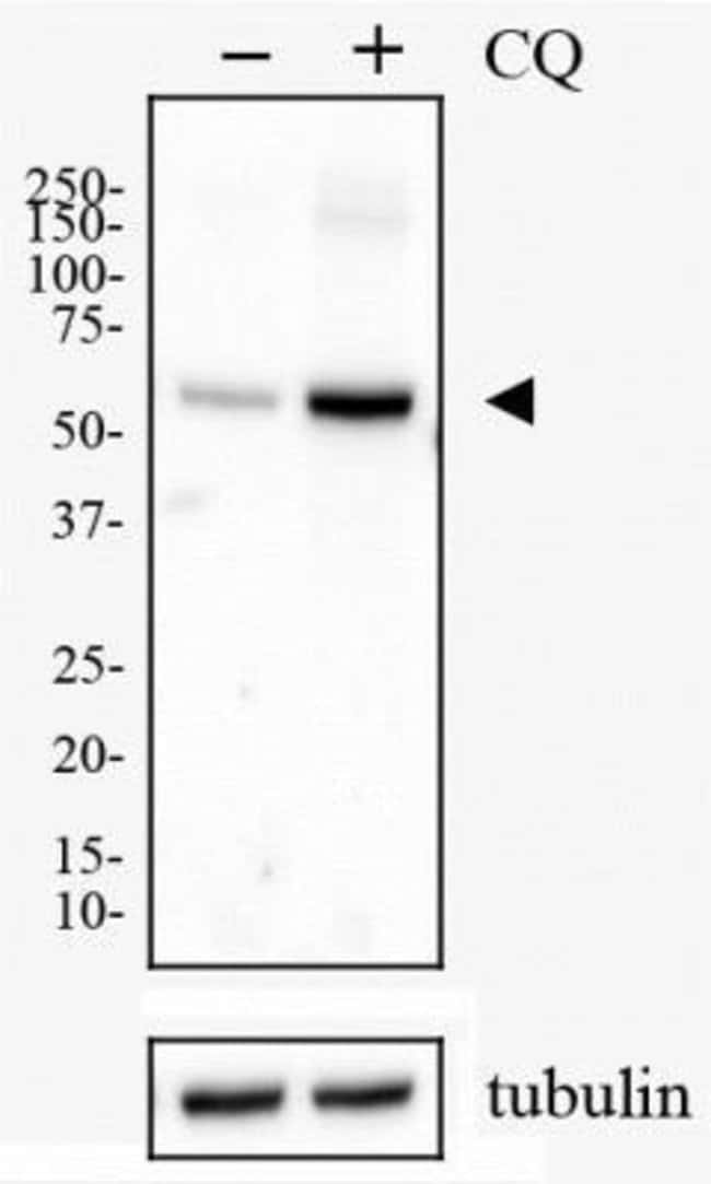 anti-p62/SQSTM1, Polyclonal, Novus Biologicals 0.025mL; Unlabeled:Life