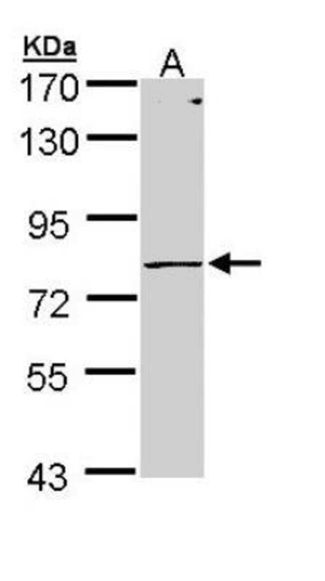 anti-pIgR, Polyclonal, Novus Biologicals 0.1mg; Unlabeled:Life Sciences