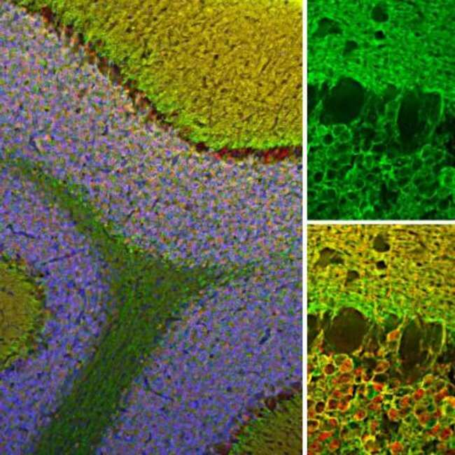 visinin-like 1 Rabbit anti-Human, Mouse, Rat, Polyclonal, Novus Biologicals:Antibodies:Primary