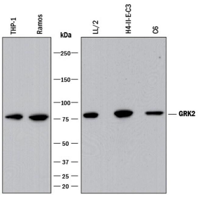 GRK2 Rabbit anti-Human, Mouse, Rat, Clone: 2089B, R::