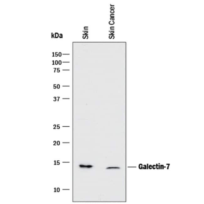 Galectin-7 Mouse anti-Human, Clone: 950756, R::
