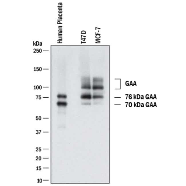LYAG/GAA, Rabbit anti-Human, Clone: 2489C, R:Antibodies:Primary Antibodies