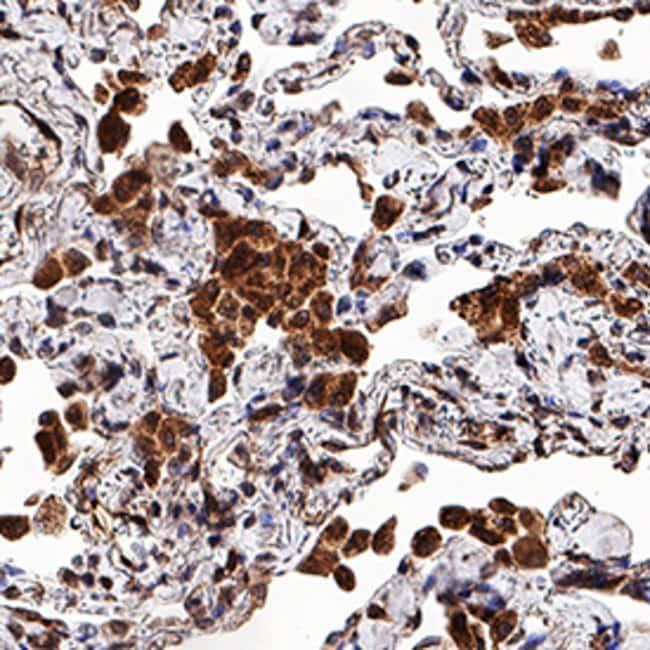 MMP-9 Mouse anti-Human, Clone: 36020, RD Systems:Antibodies:Primary Antibodies