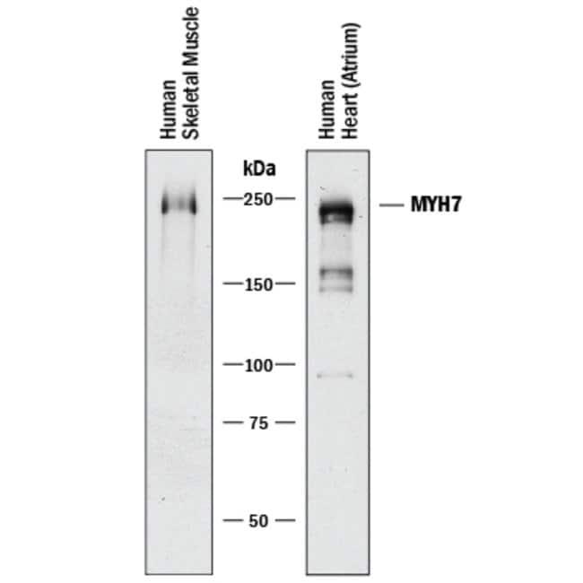MYH7 Mouse anti-Human, Clone: 940906, R::