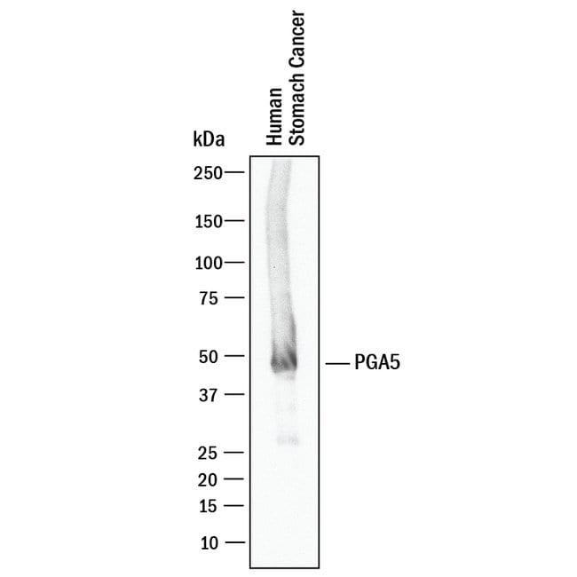 PGA5, Mouse anti-Human, Clone: 974731, R:Antibodies:Primary Antibodies