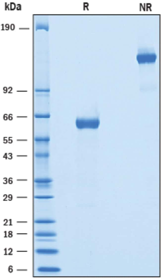 R Recombinant Mouse BTNL10/Butyrophilin-like 10 Fc Protein, CF Quantity: