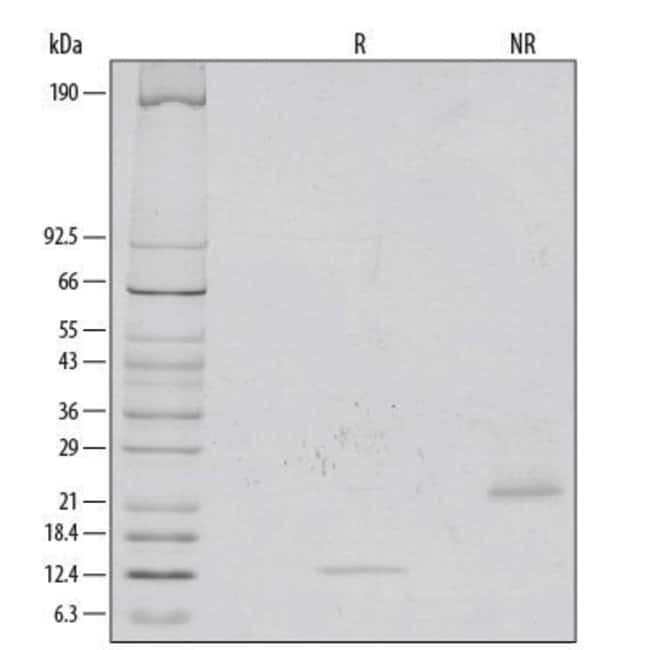 RD SystemsRecombinant Human/Mouse/Rat GDF-8/Myostatin Protein:Biochemical