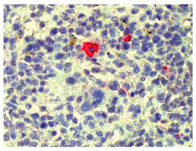 SouthernBiotech Streptavidin Reagents:Electrophoresis, Western Blotting