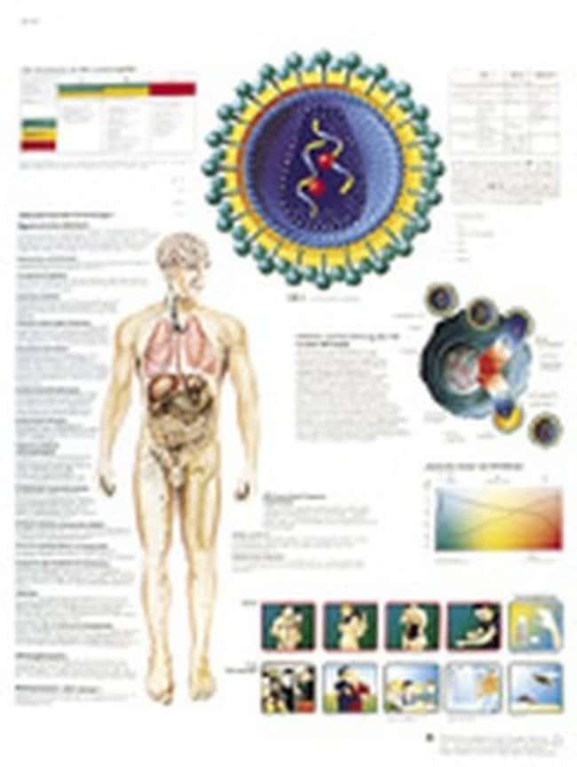 3B Scientific™Poster AIDS  STEM Medical Technology