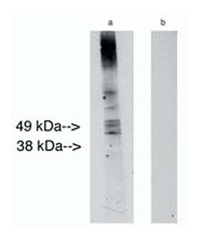 Lass2 Rabbit anti-Human, Mouse, Rat, Polyclonal, Invitrogen 100 µg;