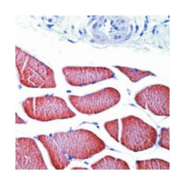 Skeletal Muscle Actin, Polyclonal, Invitrogen 7mL; Unconjugated