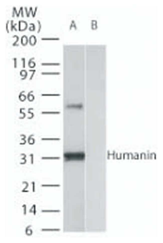 in Rabbit anti-Human, Polyclonal, Invitrogen 100 µg; Unconjugated