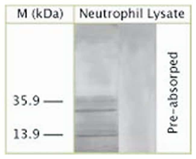 LC3A Sheep anti-Human, Mouse, Rat, Polyclonal, Invitrogen 150 µL;