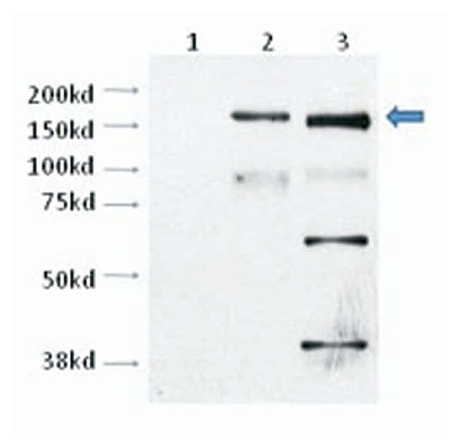 TRPM2 Rabbit anti-Human, Polyclonal, Invitrogen 100 µL; Unconjugated