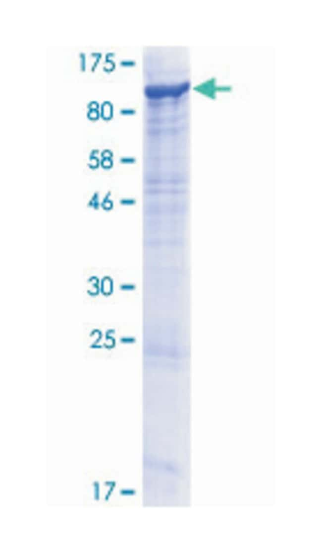 ECE1 (Human) Recombinant Protein (P01), Abnova:Life Sciences:Protein Biology
