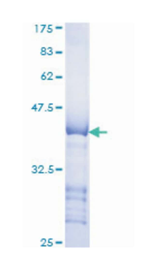 LTBP1 (Human) Recombinant Protein (Q01), Abnova:Life Sciences:Protein Biology