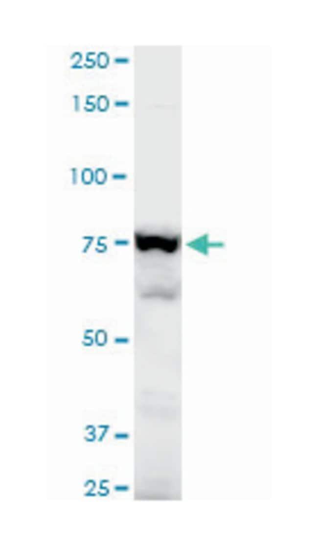 adducin 3 (gamma), Mouse, Polyclonal Antibody, Abnova 50µL; Unlabeled