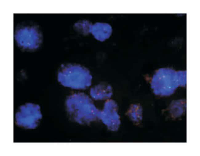 Abnova™EML4/ALK DY Translocation FISH Probe 100 μL Products