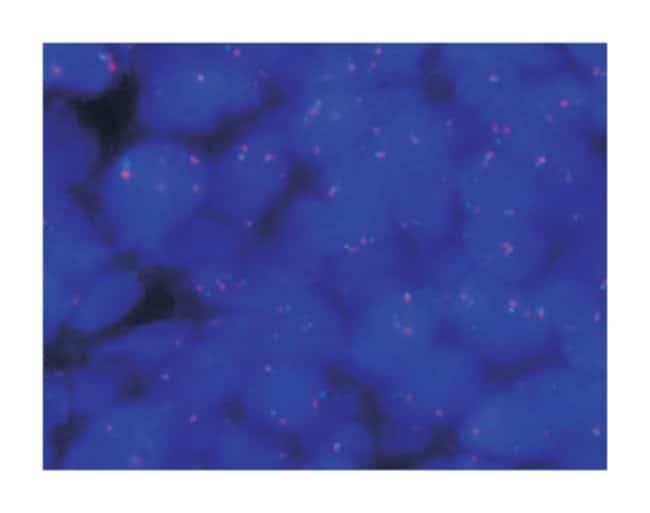 Abnova HEY1/NCOA2 DY Translocation FISH Probe 1 Set:Life Sciences