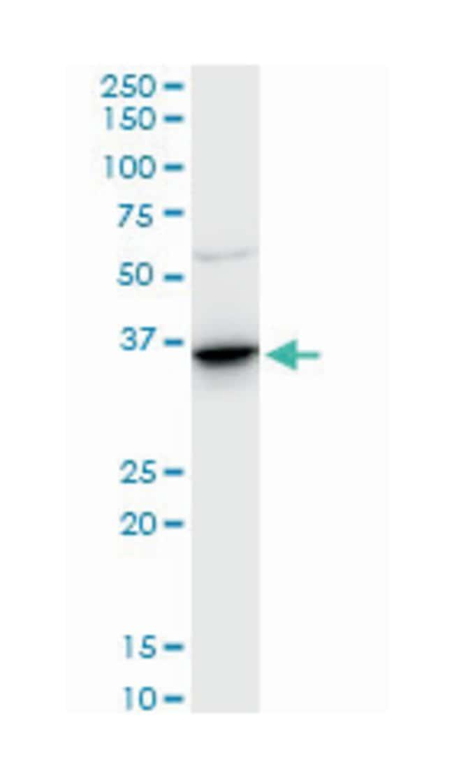 annexin A2, Mouse, Polyclonal Antibody, Abnova 50µL; Unlabeled