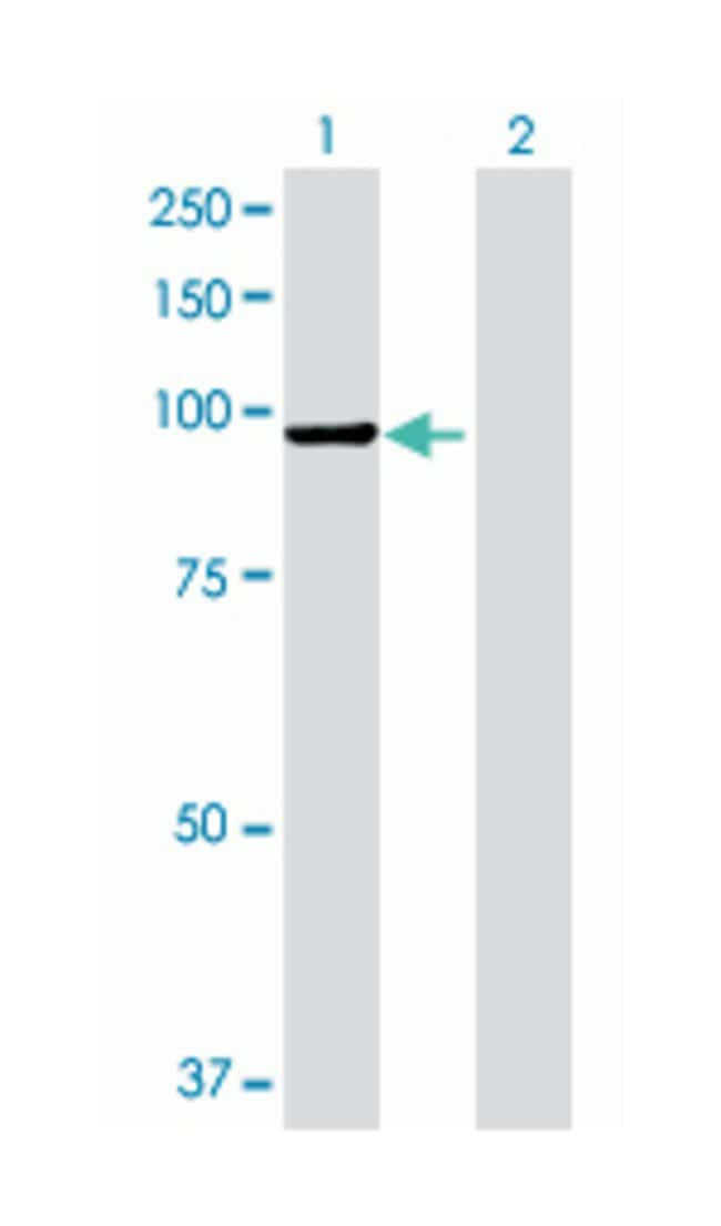 amylase, alpha 2B (pancreatic), Mouse, Polyclonal Antibody, Abnova 50µL;