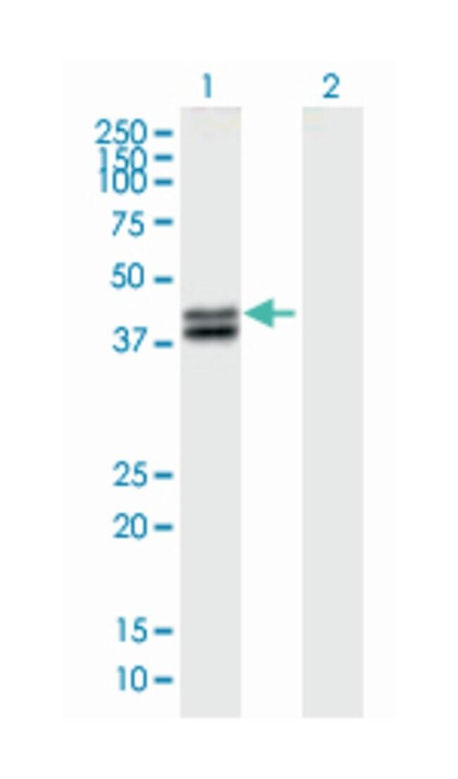 aspartate beta-hydroxylase, Mouse, Polyclonal Antibody, Abnova 50µL;