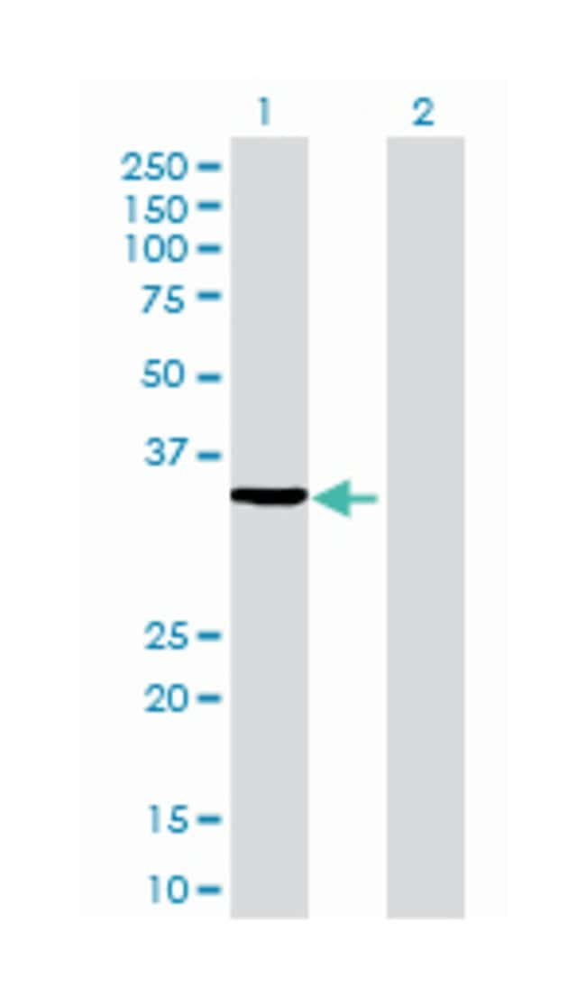 biliverdin reductase A, Mouse, Polyclonal Antibody, Abnova 50µL; Unlabeled