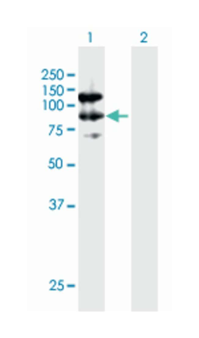 calpastatin, Mouse, Polyclonal Antibody, Abnova 50µL; Unlabeled