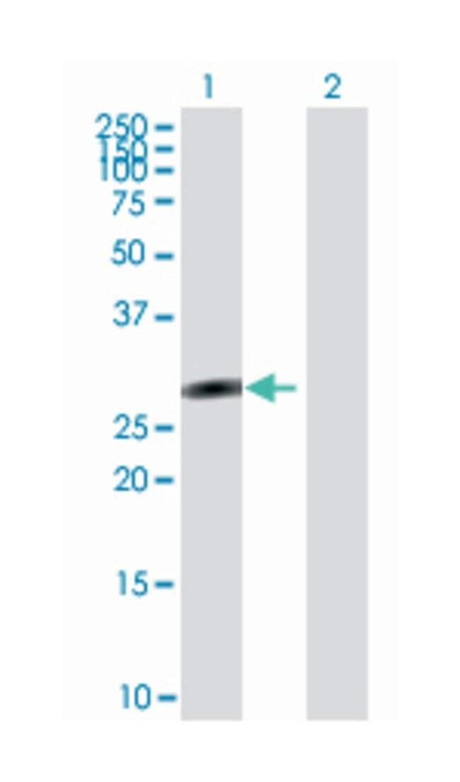 sal-like 2 (Drosophila), Mouse, Polyclonal Antibody, Abnova 50µL;
