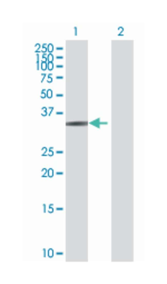 zinc finger protein 124, Mouse, Polyclonal Antibody, Abnova 50µL;