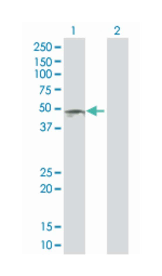 creatine kinase, mitochondrial 1B (B01), Mouse anti-Human, Polyclonal Antibody,