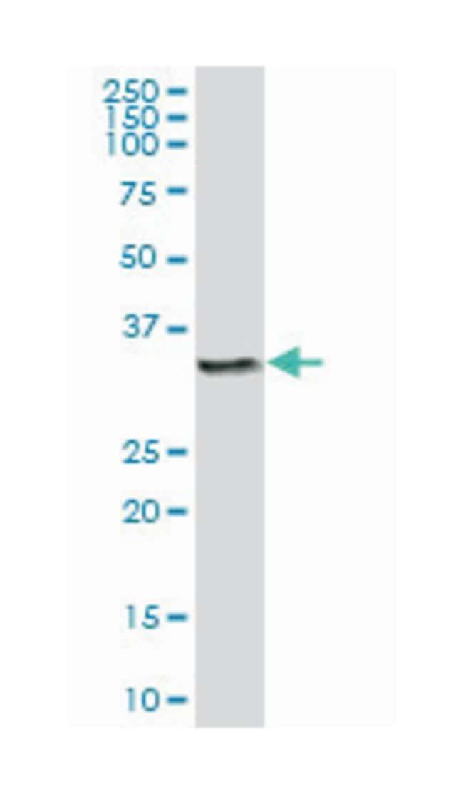 cathepsin Z, Mouse, Polyclonal Antibody, Abnova 50µL; Unlabeled